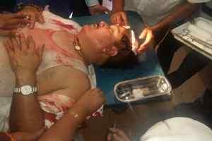 भाजपा सांसद अर्जुन सिंह का सिर फूटा